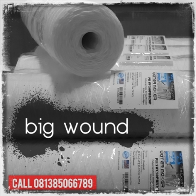Big Wound Cartridge Filter Indonesia  large2